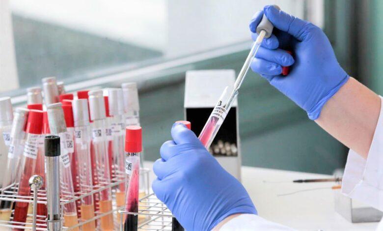 koronavirus covid 19 epidemija belgija laboratorija testovi analize 2
