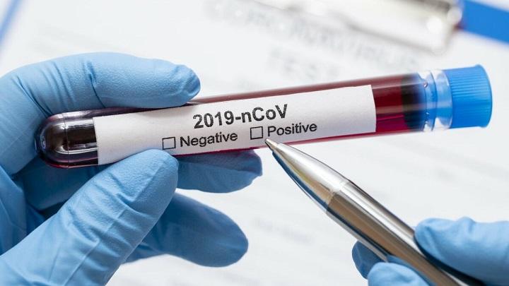 Koronavirus nalaz 1 1200x675 1
