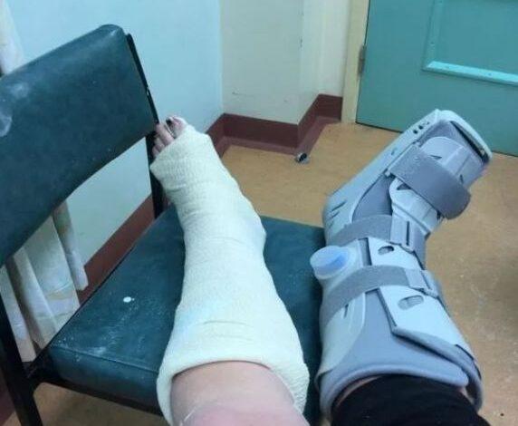 izazov tiktok slomljena noga prtscr fb